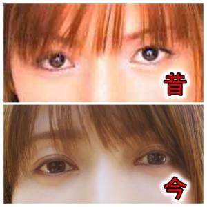 後藤真希の顔変化と昔画像