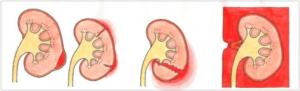 本並健治の腎臓破裂