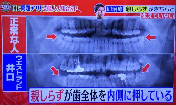 ウエストランド井口の歯矯正