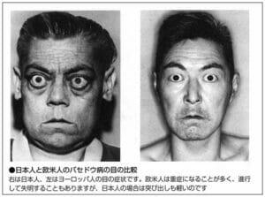 池脇千鶴バセドウ病ステロイド