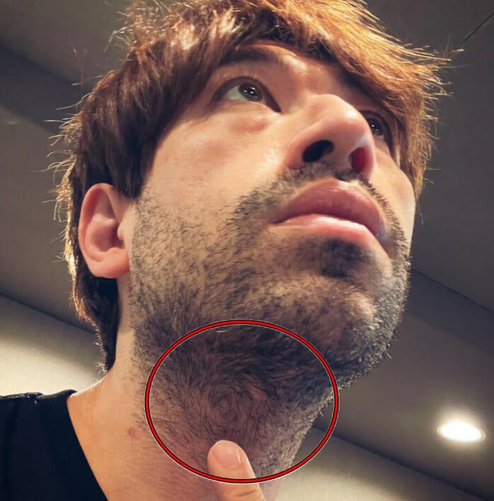 サッシャの髭の伸びやすい理由